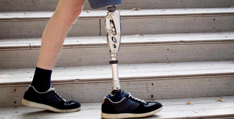 This image shows a man walking on steps after losing a leg in a catastrophic injury.
