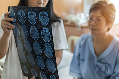 Featured Area Brain Injuries Image